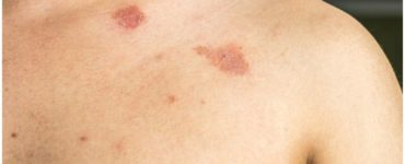 Butenafine Hydrochloride vs Clotrimazole for Jock Itch and Ringworm – Uses & Side Effects