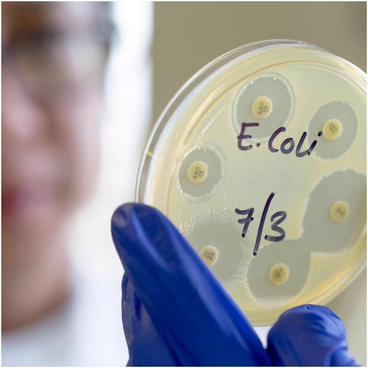 Facts About E. Coli SYMPTOMS
