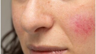 Redness Around Nose, Mouth, Chin, Cheeks, Eyes – Causes & Remedies