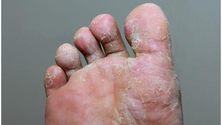 Tolnaftate vs Clotrimazole For Athlete's Foot, Ringworm, Jock Itch - Uses & Side Effects