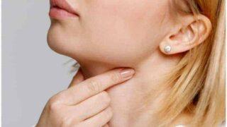 11 Essential Oils For Laryngitis & Hoarse Voice