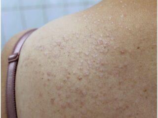 11 Essential Oils For Lichen Sclerosus & Chronic Inflammatory Dermatoses