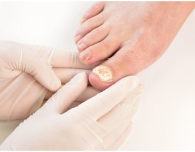 Kerydin vs Jublia For Nail Fungus – Cost & Effectiveness + Alternatives