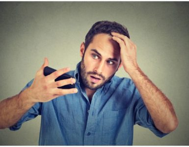 Telogen Effluvium vs Male Pattern Baldness (MPB) – Differences