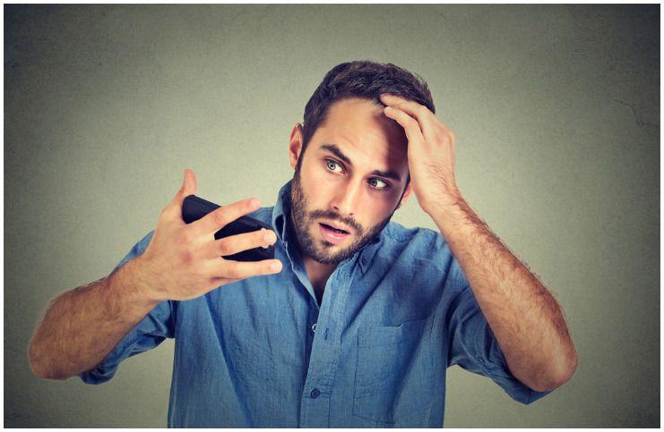 Telogen Effluvium vs Male Pattern Baldness (MPB) – Differences