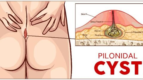 Pilonidal Cyst – 10 Natural Cures (Without Surgery)