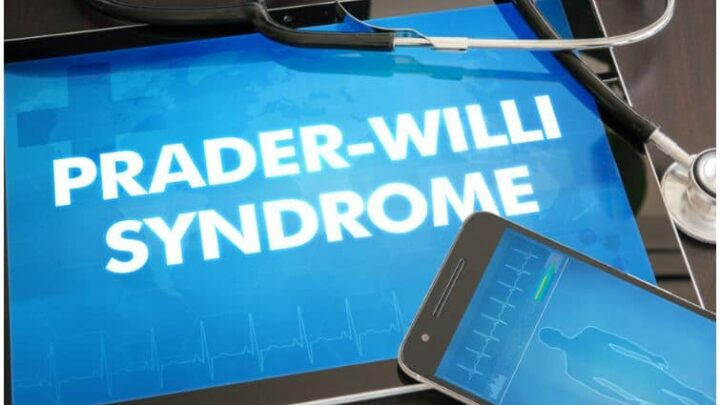 16 Interesting Facts About Prader-Willi Syndrome + Life Expectancy