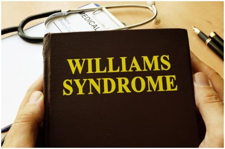 16 Interesting Facts About Williams Syndrome & Symptoms + Causes