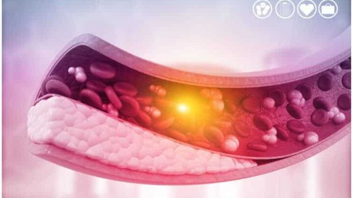20 Interesting Facts About Atherosclerosis + Statistics & Causes