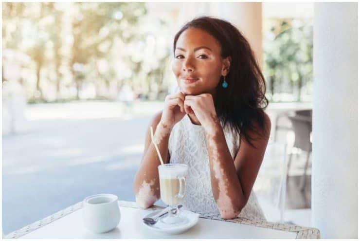 28 Interesting Facts About Vitiligo & Statistics + Famous People