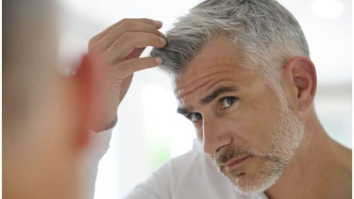 How Much Does A Hair Transplant Cost? + 7 Celebrities with Hair Transplants
