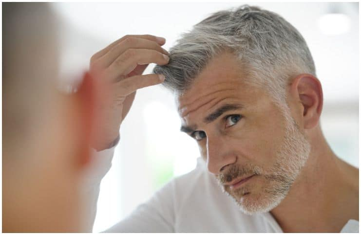 How Much Does A Hair Transplant Cost + 7 Celebrities with Hair Transplants
